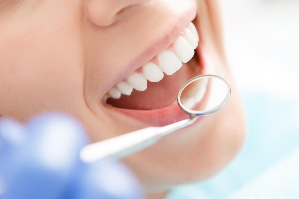 oral-health-checkup
