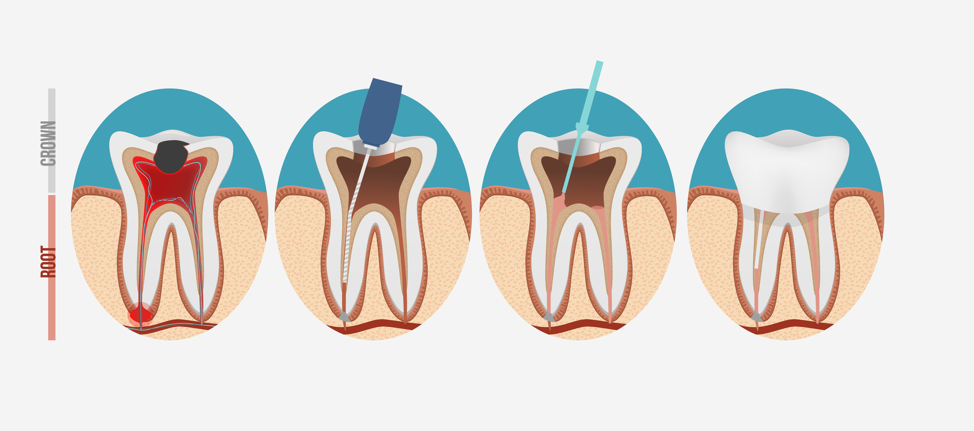root-canal-process