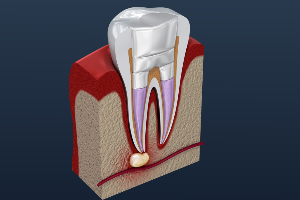 root-canal-procedure-diagram