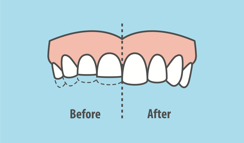 effects-of-teeth-grinding