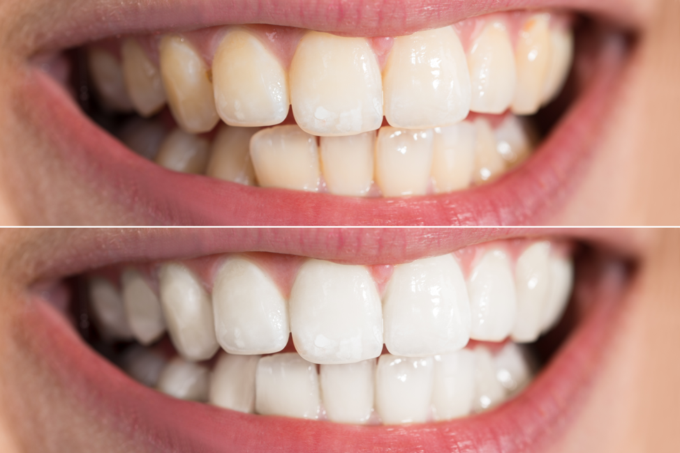 professional-teeth-whitening-before-after