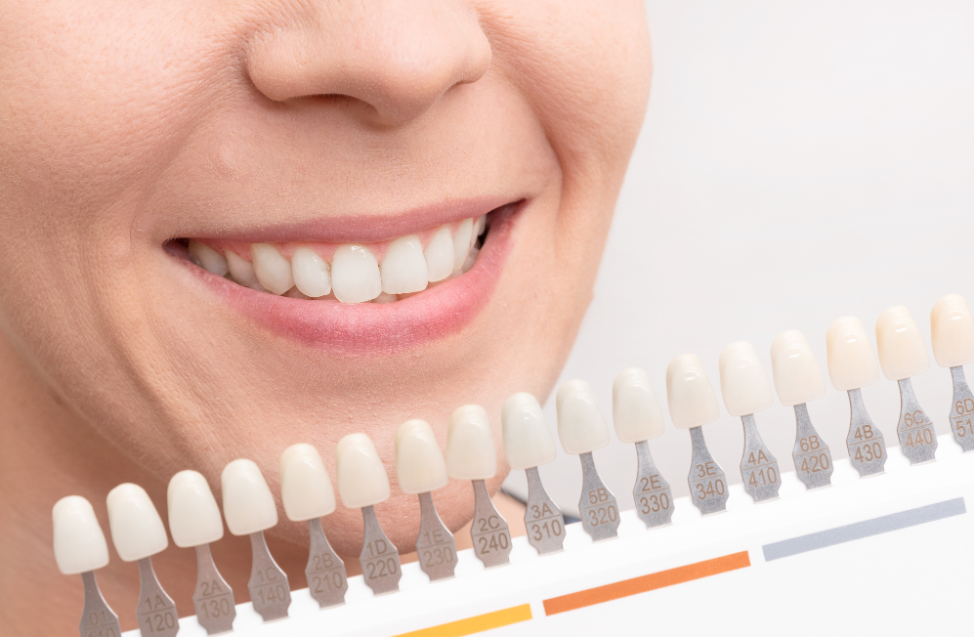 lincolnwood-teeth-whitening-dentist
