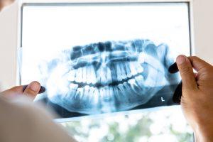 dental-x-ray-dental-innovations